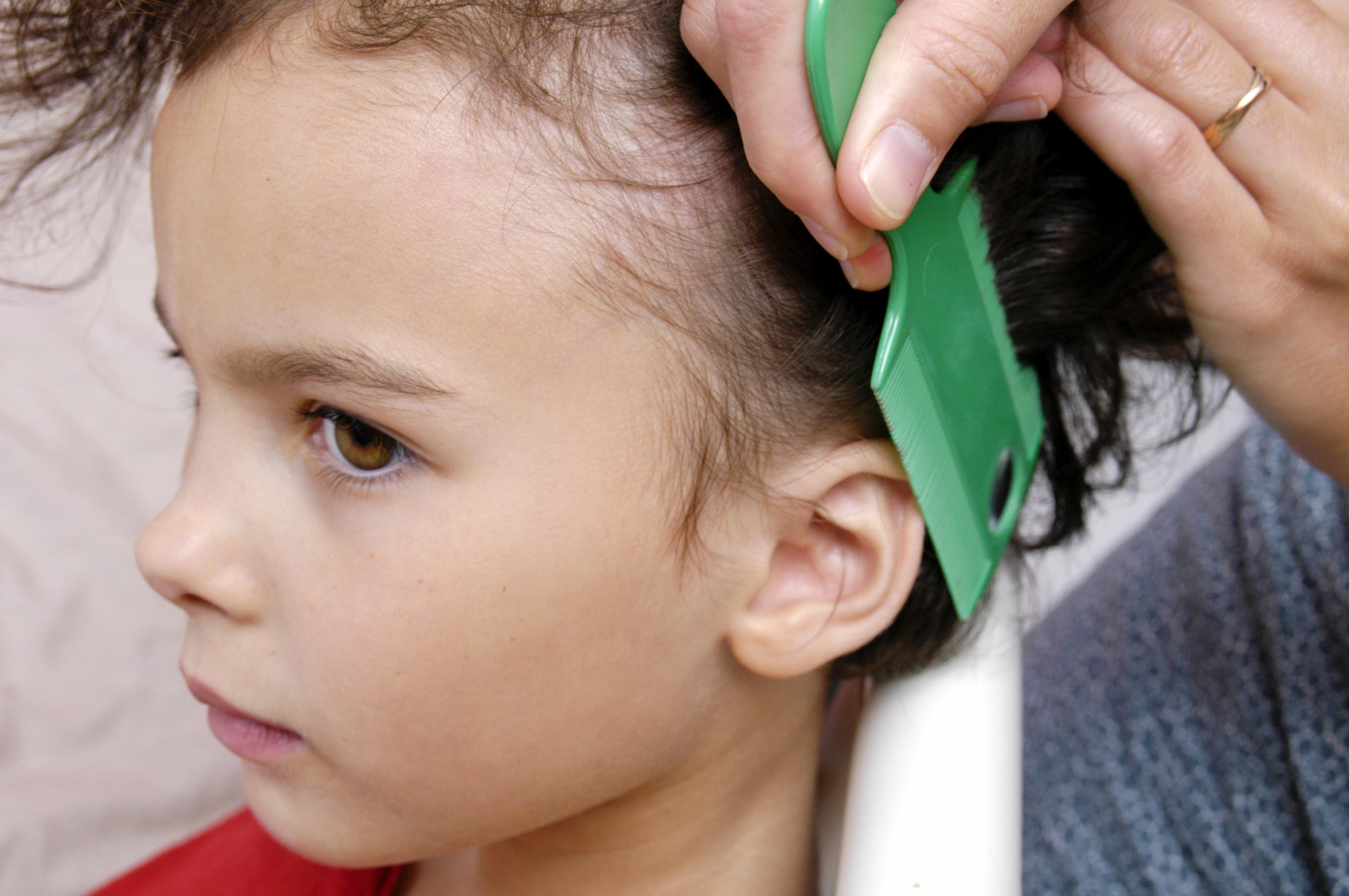 Head Lice And Colour Treated Hair Best Hair 2017
